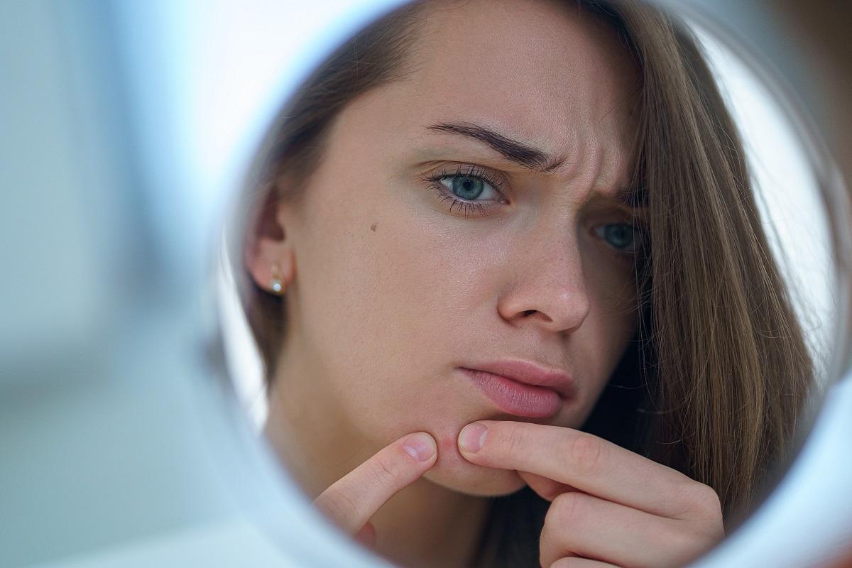 Come prevenire e curare l'acne, un disturbo tipico dell'età adolescenziale